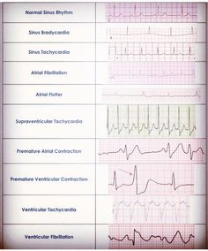 Cardiac Dysrrhythmia Aka Arrhythmia And Irregular