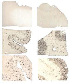 Clue to Alzheimer's Cause Found in Brain Samples