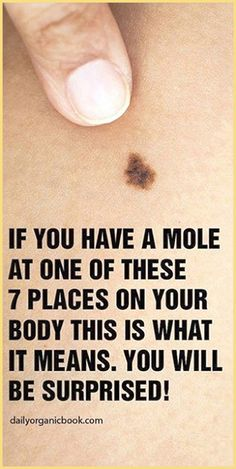 Every individual has moles all over their body. Some are small, some are bigger, however their position on your body has a special meaning. Natural Life, Natural Herbs, Natural Healing, Natural Living, Holistic Healing, Holistic Remedies, Herbal Remedies, Natural Remedies, Headache Remedies