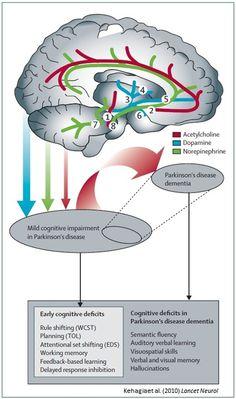 Etiology of Parkinson's Disease
