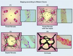 """""""Mechanics of cells' long-range communication modeled by researchers""""  Interdisciplinary research is showing how cells interact over long distances within fibrous tissue, like that associated with many diseases of the liver, lungs and other organs. By developing mathematical models of how the collagen matrix that connects cells in tissue stiffens, the researchers are providing insights into the pathology of fibrosis, cirrhosis of the liver and certain cancers.  http://bit.ly/1zdD8jY"""