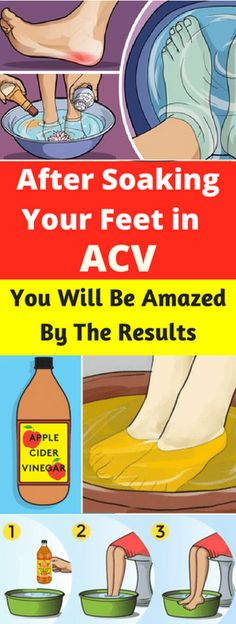 After Soaking Your Feet in ACV, You Will Be Amazed By The Results