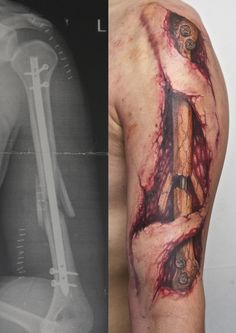 Broken Arm Tattoo................ Want people to sympathize with you? Get the image of a broken arm tattooed to you.