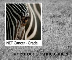 NET Cancer - Grade. G1 - NETs are relatively slow growing. G2 - NETs have a less predictable, moderately aggressive course. G3 - NEC (neuroendocrine carcinomas) can be highly aggressive. Learn more - http://www.neuroendocrinetumor.com/…/exp…/classification.jsp