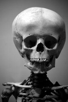 skull of a child.