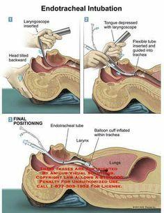 #Endotracheal #Intubation