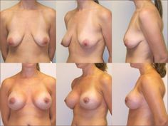 Naked tits before and after boob job