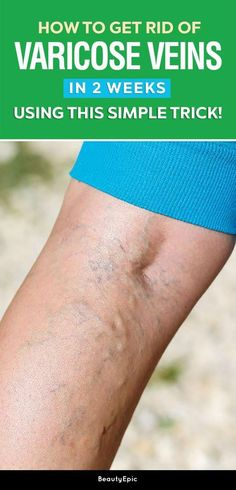 How to Get Rid of Varicose Veins In 2 Weeks Using This Simple Trick!