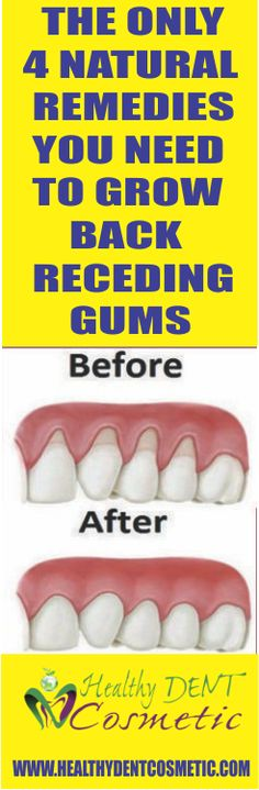 The Only 4 Natural Remedies You Need To Grow Back Receding Gums!