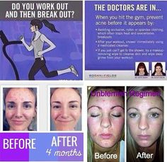Let Rodan + Fields solve this problem and help keep you in the gym!!! Our Acne Relief Regimen Unblemish was recently named the number 1 premium acne skincare brand in the US... The results speak for themselves, but the products are also backed by a 60 day money back guarantee, so there really is nothing to loose!!!