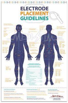 Electrode Placement Guidelines | TENS Electrode Chart | Medi-Stim, Inc.