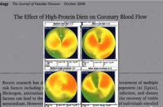 This video demonstrates how low-carb diets impair blood flow in the heart. Low-carb diets are associated with high rates of heart disease & mortality. Plant Based Nutrition, Plant Based Diet, Protein Diets, No Carb Diets, Low Glycemic Diet, The Way You Are, Best Diets, Healthy Weight Loss, Clean Eating
