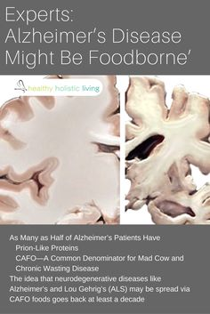 Experts: Alzheimer's Disease Might Be 'Foodborne'