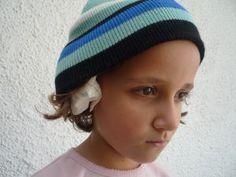 Ohrenschmerzen beim Kind - Zwiebelsaeckchen- onions help against toddler ear pain