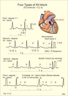 CARDIOVASCULAR PHYSIOLOGY: This was my favorite subject in nursing school. Still love arrhythmias to this very day :)