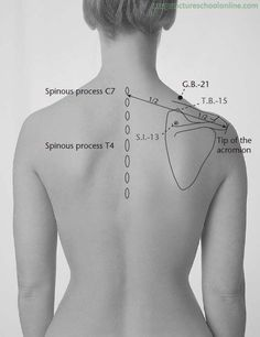 G.B.-21 Shoulder Well JIANJING - Acupuncture Points | Acupuncture ... #acupuncturebackpain