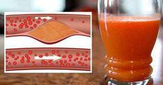 Ингредиенты: 1/2 грейпфрута 1 чайная ложка лимонного сока 1/2 чайной ложки натертого имбирного корня 2 стебля сельдерея Поместите все ингредиенты в блендер, добавьте 300 мл очищенной воды и хорошо перемешайте. ВНИМАНИЕ! Всегда употребляйте этот напиток не менее, чем за 2 часа до или после приема таблеток! Грейпфрут может помешать действию таких препаратов: Антигистаминные лекарства от …