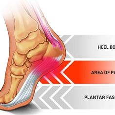 Having an active lifestyle is great but has it's draw back at times. For example high impact sports like rugby, football, basketball, tennis, gymnastics, dance, badminton, running and many more can cause multiple sport injuries. A common injury related to foot pain is plantar fasciitis.  WHAT is Plantar Fasciitis?  Plantar Fascia is a thick band of tissue that is jointed between the heel bone to the rest of the foot. Plantar Fasciitis is the medical term used where the tissue that connects…