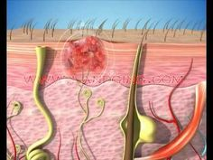 """http://www.landging.com/dermatology_animation.html  Dermatology Animation demonstrates structure of skin and soft tissue and clinical pharmacology & therapeutics."""
