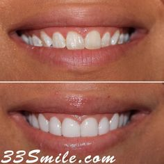 Success Story Alert! Prepless veneers. Here is what our patient had to say:  Everyone is so friendly. My teeth turned out amazing. Ill no longer feel insecure about my smile. Thank you to Dr. Moore and his wonderful staff that has walked me through my process even with me coming from Arizona. They were patient with me. I will always cherish CDA. B.J.    #drjamsmiles #33Smile .  . All photos and video of patients are of our actual patients.  All media is the  of Cosmetic Dental Associates… Be Patient With Me, Dental Cosmetics, Dental Procedures, Feeling Insecure, Success Story, Cosmetic Dentistry, Beautiful Smile, I Smile, Teeth