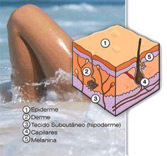 A celulite é basicamente uma célula de gordura inflamada. Onde a célula de gordura se expande, acumulando toxinas, enfraquecendo o tecido conjuntivo.