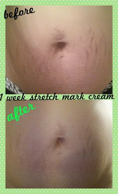 It Works stretch mark cream is sensational! Look at the results after just 1 WEEK of use! Oily Skin Care, Face Skin Care, Acne Skin, Acne Prone Skin, Acne Scars, Stretch Mark Cream, Stretch Marks, Best Anti Aging