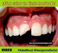 traumatismo-dental