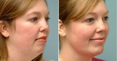 There are some things you can do to avoid loose skin and double chin.