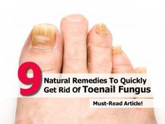 Natural Remedies for Treating Toenail Fungus