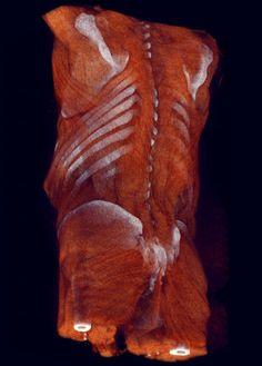 Renderización volumétrica de una tomografía computerizada con costrate toraco-abdominal. Es un estereograma hecho con la técnica Crossview.  Rendering done with a Carestream workstation.