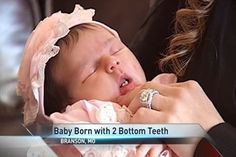 Branson Baby Born with Two Front Teeth - NWAhomepage.com