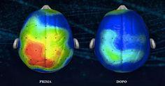 Un team di neuroscienziati hanno scoperto la canzone più rilassante al mondo che riduce ansia e stress. E' stata creata da esperti di musicoterapia
