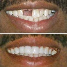 MAGIC Teeth Brace - Bigsuprise Chipped Tooth Repair, Perfect Smile Teeth, Cracked Tooth, Veneers Teeth, Teeth Braces, Stained Teeth, Natural Teeth Whitening, Whitening Kit, Teeth Care