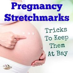 MUST Pin if you're pregnant -- great tips on what works for keeping stretchmarks away! http://thestir.cafemom.com/pregnancy/173283/preventing_stretchmarks_in_pregnancy_4?utm_medium=sm&utm_source=pinterest&utm_content=thestir&newsletter