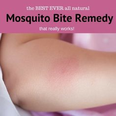 Mosquitoes may be tiny but they sure can be a big problem with those itchy bites! This remedy just might just save you from long nights lying awake scratching  #mosquitobite #ad #ebay #stopscratching