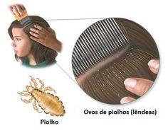 Piolhos? Lêndeas? Olha aqui como acabar definitivamente com esses bichinhos que só geram desconforto! http://salaovirtual.org/como-acabar-piolho-lendea/ #tratamentos #piolhos #lendeas #salaovirtual