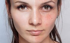 How to Remove Dark Spots with Baking Soda Naturally Natural Treatments, Skin Treatments, Dark Spots On Skin, Skin Spots, Chemisches Peeling, Skin Specialist, How To Lighten Hair, Skin Mask, Skin Products