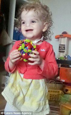 Menina que nasceu sem nariz recebe prótese 3D; confira o resultado - Brasil e Mundo - Portal GCN.net.br