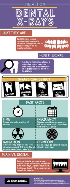 Get the 411 on #Dental X-Rays! #DeltaDental