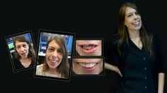 If you're looking for the best dentist Melbourne CBD? We offer General, Restorative and Cosmetic Dentistry Best Teeth Whitening, Whitening Kit, Porcelain Veneers, Smile Makeover, Melbourne Cbd, Best Dentist, Cosmetic Dentistry, Your Smile, Clinic