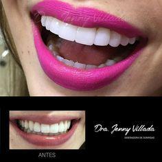 Composite veneers can be a dream come true for people seeking a solution for aesthetic flaws. Las carillas en resina pueden ser un sueño hecho realidad para las personas que buscan una solución para los defectos estéticos. #smiledesing #smiledesigner #dentist #dentista #dentistry #odontology #teeth #tooth #dental #veneers #cosmetic #cosmeticdentistry #cosmeticdentist #futuredentist #aesthetics by drajennyvillada Our Cosmetic Dentistry Page…