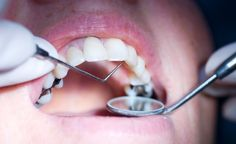 Due to high #dental fees, many are neglecting their #oralhealth