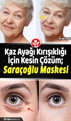 Healthy Beauty, Health And Beauty, Vaseline Uses For Face, Brown Spots On Skin, Skin Spots, Brown Skin, Skin Moles, Facial Yoga, Face Wrinkles