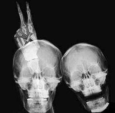 x-ray humor