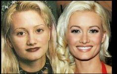 Holly Madison Nose Job with Plastic Surgery Doctor Name are also available with her rhinoplasty pictures, nose job cosmetic surgery, Holly Madison nose job cost and time duration. Evolution, Plastic Surgery Photos, Holly Madison, Celebrity Plastic Surgery, Best Teeth Whitening, Lip Injections, Photoshop, Cosmetic Procedures, Lip Fillers
