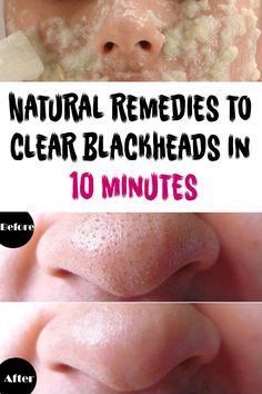 NATURAL REMEDIES TO CLEAR BLACKHEADS