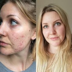 How to treat fungal acne (Malassezia) naturally. What is fungal acne? How do you diagnose fungal acne? What steps can you take to clear fungal acne? Natural Hair Treatments, Skin Treatments, Damp Hair Styles, Natural Hair Styles, Hair Boost, Brittle Hair, Natural Moisturizer, Acne Treatment, Spot Treatment