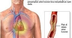 In angina, a patient may feel chest pain and discomfort. When the heart muscle gets an insufficient blood oxygen supply, it leads to angina. Angina Pectoris, Heart Failure Treatment, Nursing Care Plan, Study Nursing, Medical Surgical Nursing, Medical Care, Heart Function, Heart Muscle, Heart Conditions