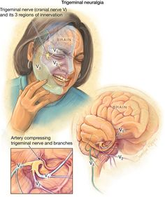 What is trigeminal neuralgia? Trigeminal neuralgia is nerve pain in the face, teeth, mouth, or nose. Attacks of pain may occur on one or both sides of the face. Trigeminal neuralgia is also called. Trigeminal Neuralgia Symptoms, Glossopharyngeal Neuralgia, Nerf Facial, Tooth Nerve, Facial Nerve, Jaw Pain, Craniosacral Therapy, Medical Anatomy, Health