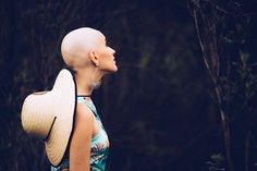 Brasiliense com câncer de mama faz ensaio contra o preconceito e recupera autoestima